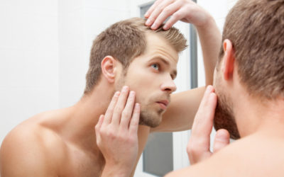 Arganöl, Kokusöl und Rizinusöl gegen Haarausfall